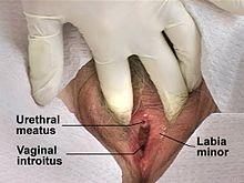 Piss Catheter Tube