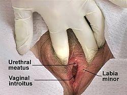 Uretriitti