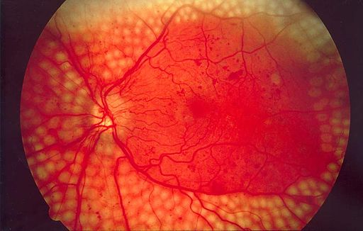 Fundus photo showing scatter laser surgery for diabetic retinopathy EDA09