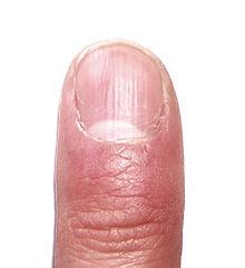 Warum bekommen Sie Psoriasis auch an Ihren Nägeln?