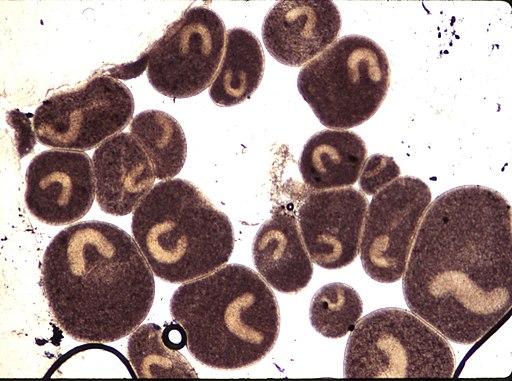 Ichthyophthirius multifiliis