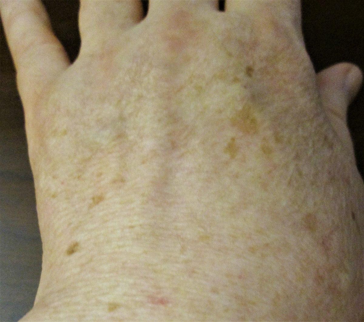 Liver spots, light-skinned Caucasian man, age 63.jpg