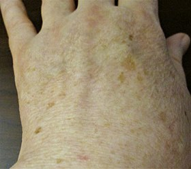 Liver spots, light-skinned Caucasian man, age 63.jpg