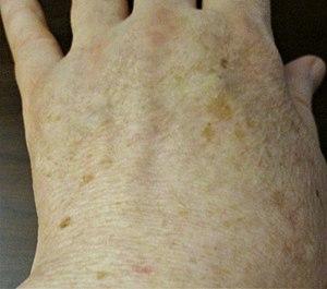 spots on skin