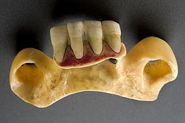Gars datant avec de mauvaises dents