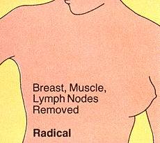 Mastectomy (radical).jpg