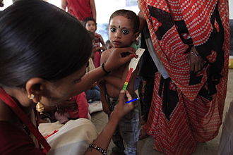 Malnutrition in children - A child's upper arm is measured to detect malnutrition in the village of Baggad, in Madhya Pradesh's Dhar district (India)