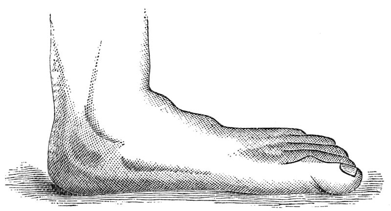 File:PSM V24 D672 Splay or flat foot.jpg