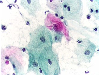 Anatomical pathology - Cytopathology: microscopic appearance of a Pap test. The pink cell at the center with a large nucleus is abnormal, compatible with low-grade dysplasia.