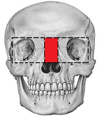 Facial cleft - Image: Picture box osteotomy