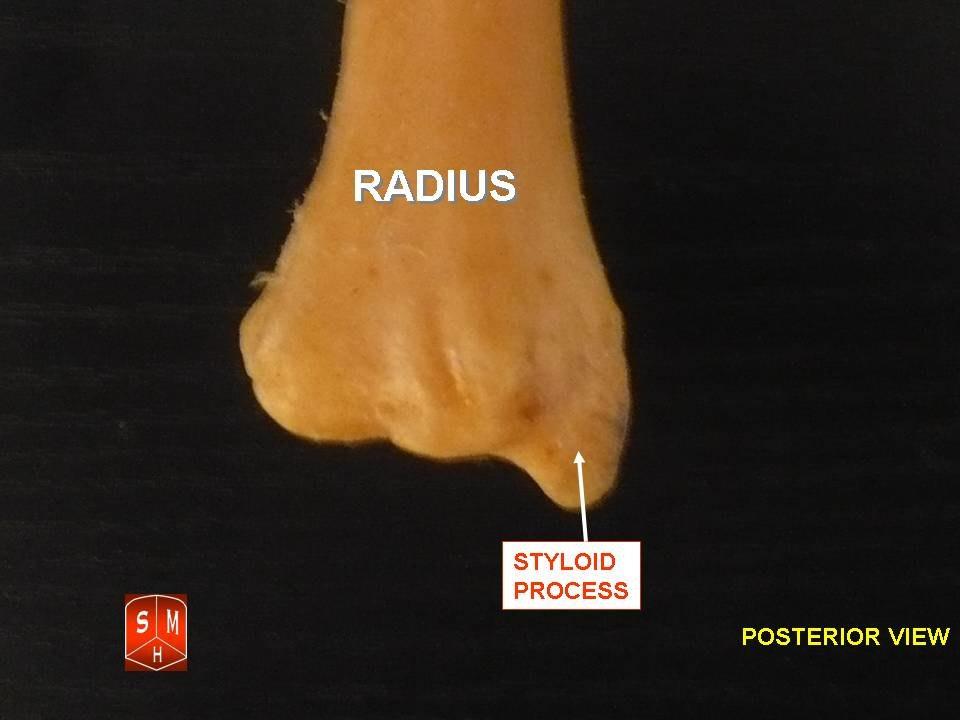 Radius3