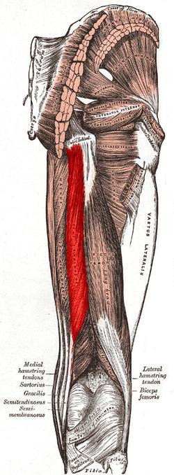 and posterior femoral regions   Semitendinosus labeled at bottom leftSemitendinosus Tendon