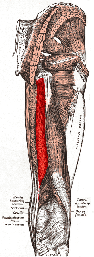 Semitendinosus muscle - Muscles of the gluteal and posterior femoral regions. Semitendinosus labeled at bottom left.