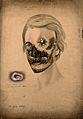 Syphilis; severe lesions on face, 1855 Wellcome V0009875.jpg