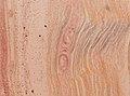 Trichinella spiralis (YPM IZ 093425).jpeg