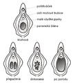Typy panenských blan.png