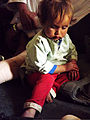 A 3-year-old boy rests on his father's bandaged leg during a meeting with International Security Assistance Force service members Nov. 15, 2011, in Kandahar province, Afghanistan 111125-A-BE343-004.jpg