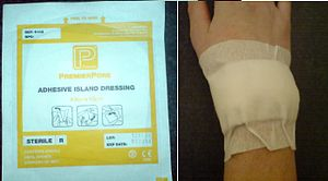 Dressing (medical) - An adhesive island dressing, in its original packaging (left) and on a person's wrist (right).