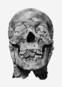 Amenhotep III mummy head.png