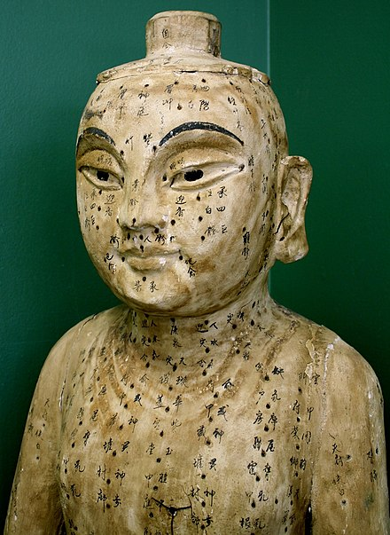 Acupuncture - WikiMili, The Free Encyclopedia