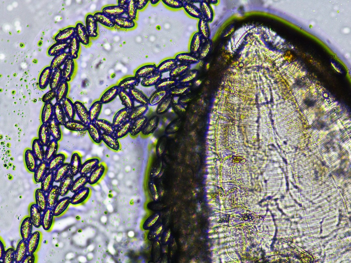 enterobius vermicularis uova