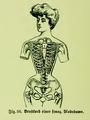 Die Frau als Hausärztin (1911) 056 Brustkorb einer französischen Modedame.png