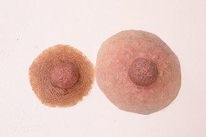 Nipple prosthesis - Examples of custom nipple prostheses Courtesy www.feelingwholeagain.com