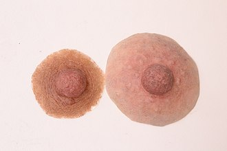 Nipple prosthesis - Examples of custom nipple prostheses Courtesy www.feelingwholeagain.com