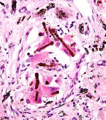 correlacionador adenocarcinoma de próstata amianyo