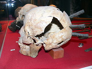 Mästerby - The skull of a participant in the 1361 campaign, shot by three arrows.