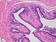 Histopathology of intraductal papilloma.jpg
