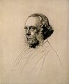 Joseph Lister, 1st Baron Lister (1827 – 1912) surgeon Wellcome V0003616.jpg
