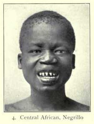 Negroid - Central African man, Pygmy type