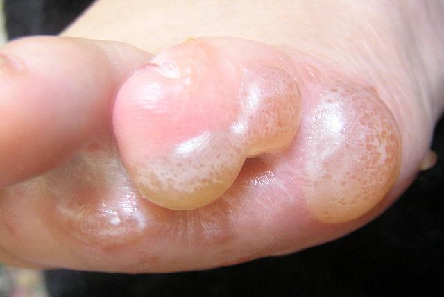 steroid cream burn treatment