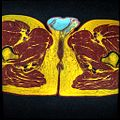 Pelvic MRI T1FSE T2frFSE T2FSfrFSE 28.jpg