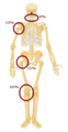 Predilection sites of osteosarcoma2.png