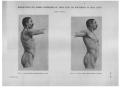 Richer - Anatomie artistique, 2 p. 116.png