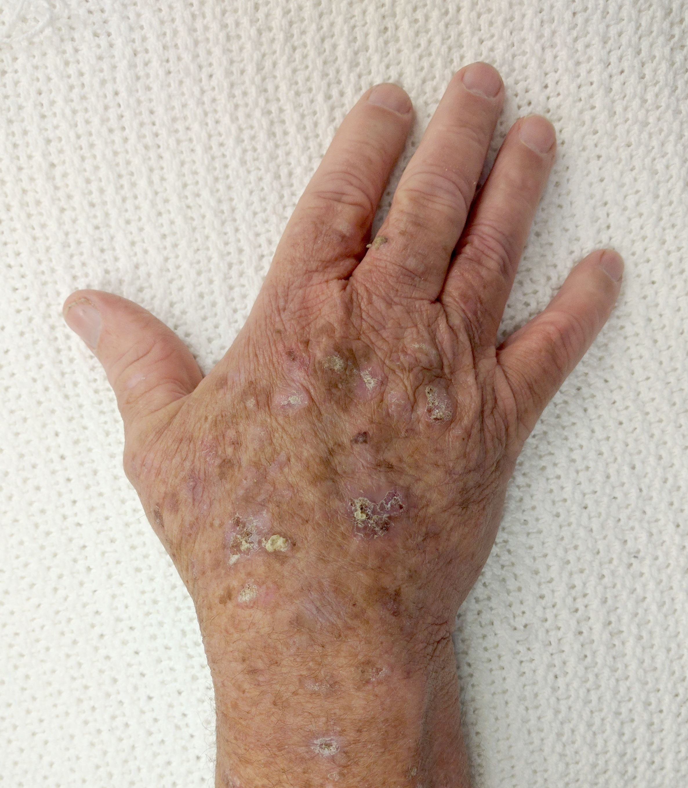 Actinic keratosis - The complete information and online sale with