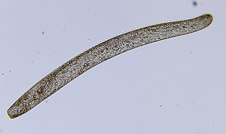Protozoa - The ciliate Spirostomum ambiguum can attain 3 mm in length