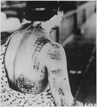 The patient's skin is burned in a pattern corresponding to the dark portions of a kimono worn at the time of the... - NARA - 519686.tif