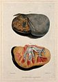 Two sections of diseased kidney. Coloured mezzotint by W. Sa Wellcome V0009744ER.jpg