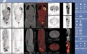 PET-CT - Image: Viewer medecine nucleaire keosys