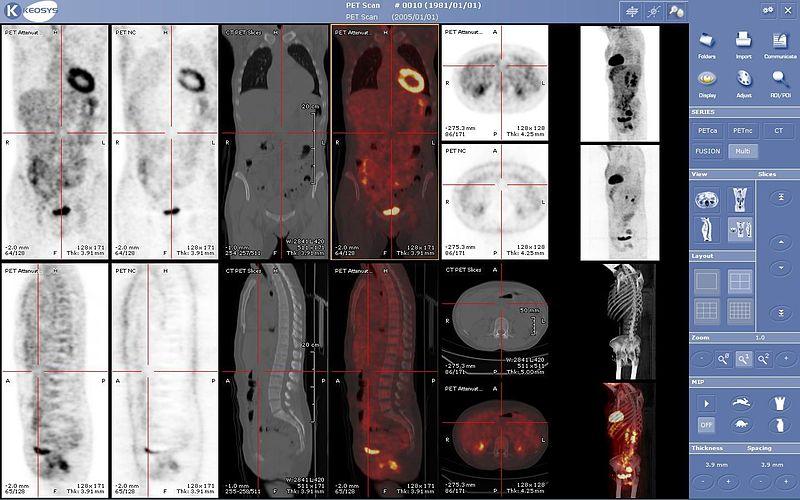 Archivo:Viewer medecine nucleaire keosys.JPG