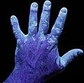 Vitiligo UV 1.jpg