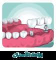 كيف تتم زراعة الأسنان.png