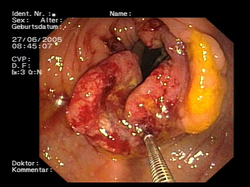 Imagen endoscópica de un cáncer colorrectal