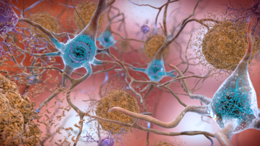 Beta-Amyloid Plaques and Tau in the Brain (38686503251)