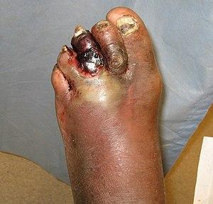 DMgas gangrene.jpg