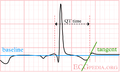 De-LastigeQT3 (CardioNetworks ECGpedia).png