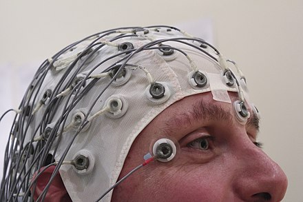 An EEG can aid in locating the focus of the epileptic seizure. EEG Recording Cap.jpg